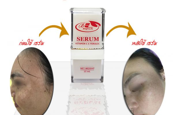 serum-vitaminc-beginlife-review-012C2713B8-021F-9D6E-E07D-B9E36229F5A1.jpg
